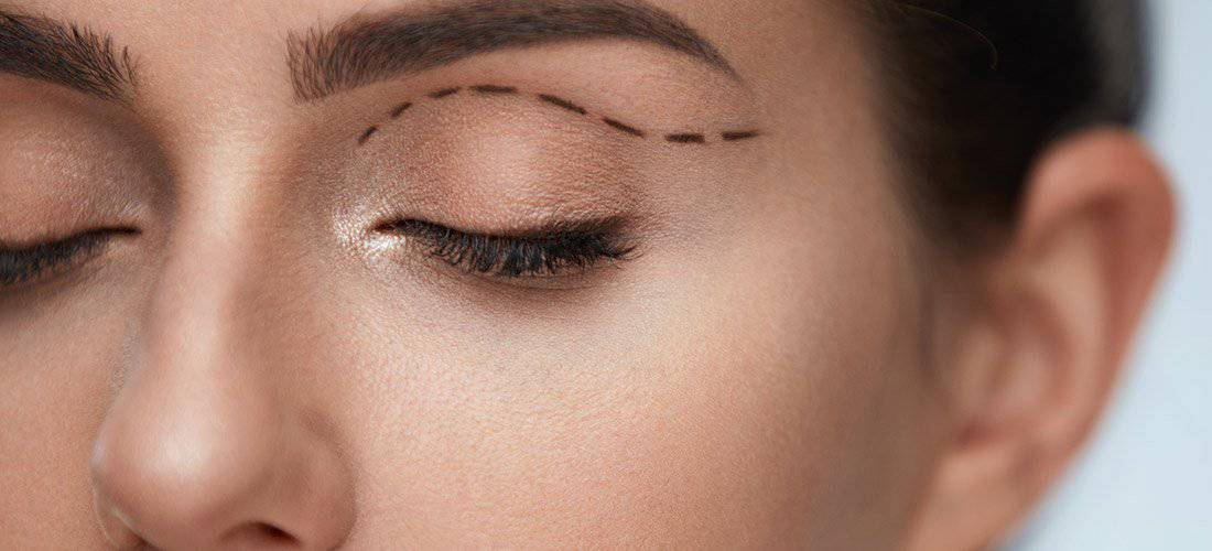 Botox or Eyelid Surgery