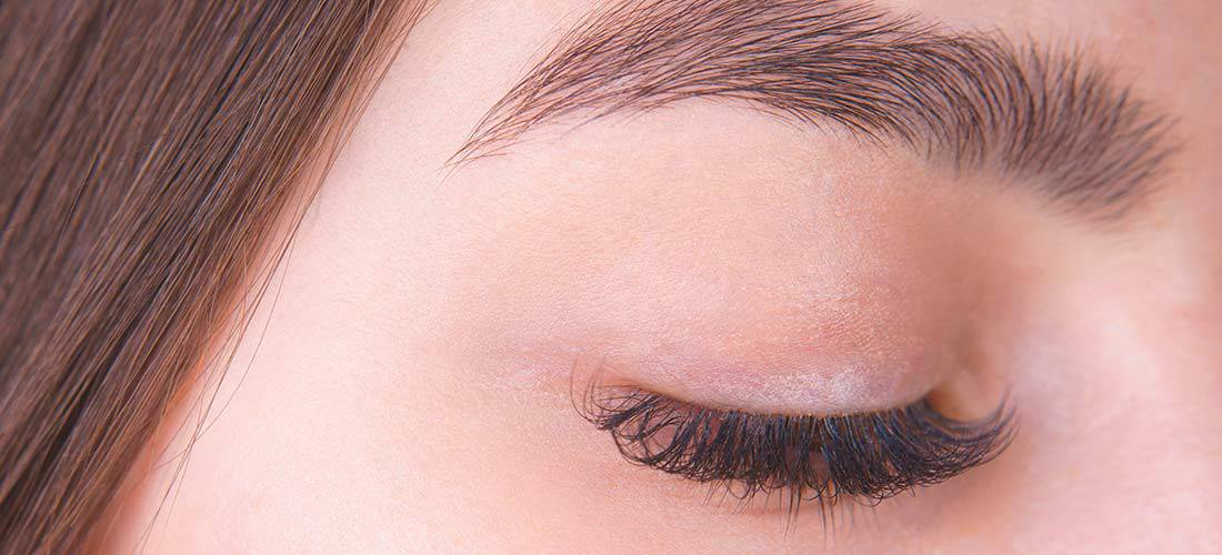 Brow Lift or Eyelid Surgery