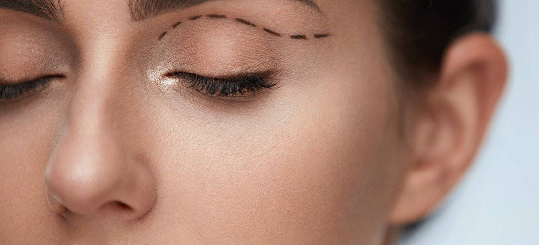 Eyelid Surgery Geneva IL