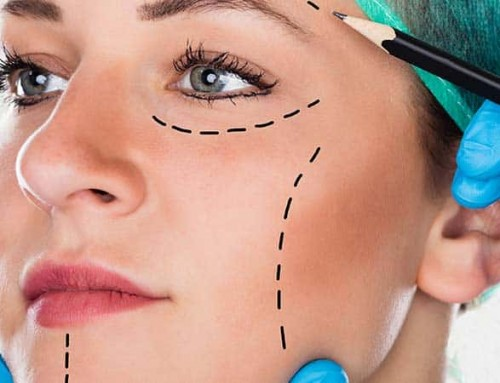 Misconceptions About Facelift