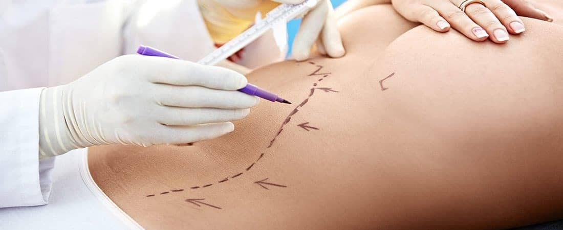 Misconceptions About Liposuction