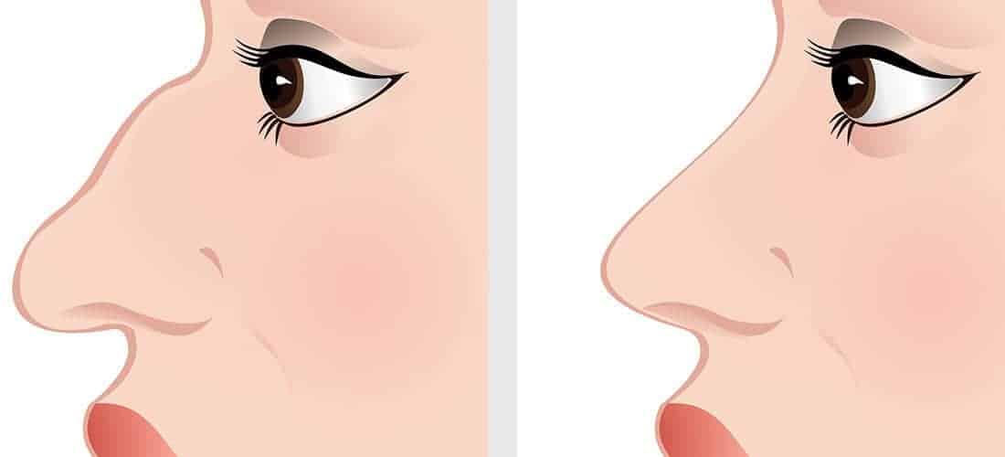 Nose Job Recovery Tips