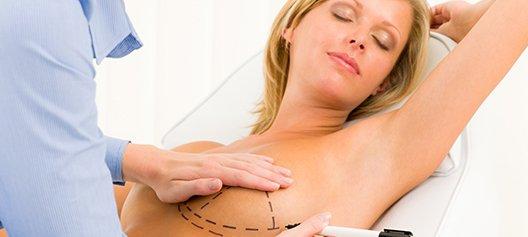 breast augmentation naperville, il