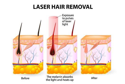 laser hair removal geneva, il